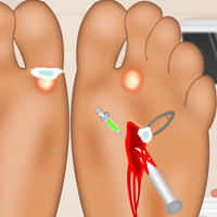 Sole Surgery thumbnail